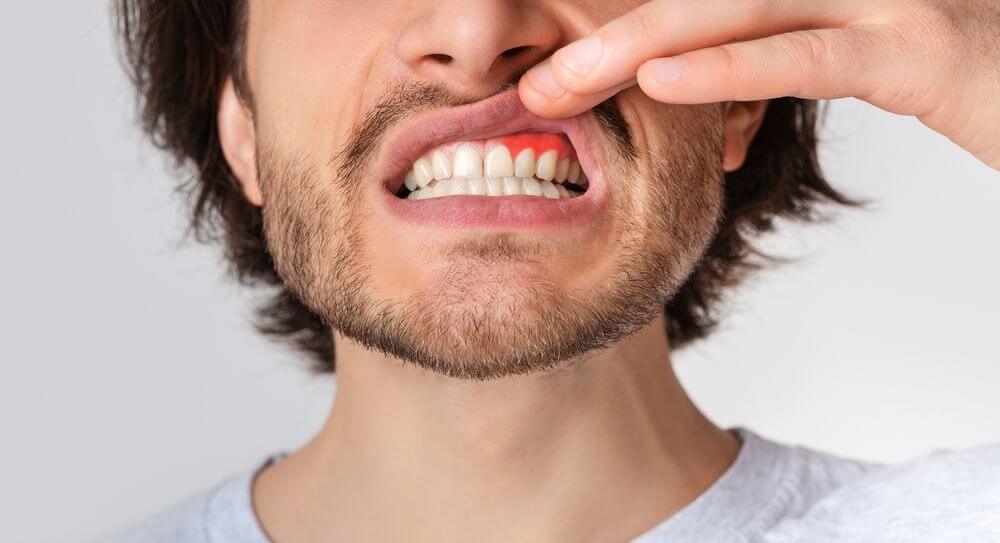 a mouth that has inflamed gums
