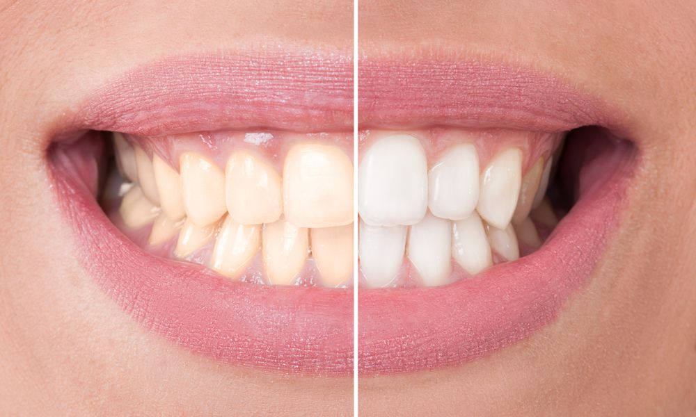 side by side comparison of before and after a teeth whitening